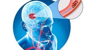 Accident vascular cerebral – primele semne, primul ajutor